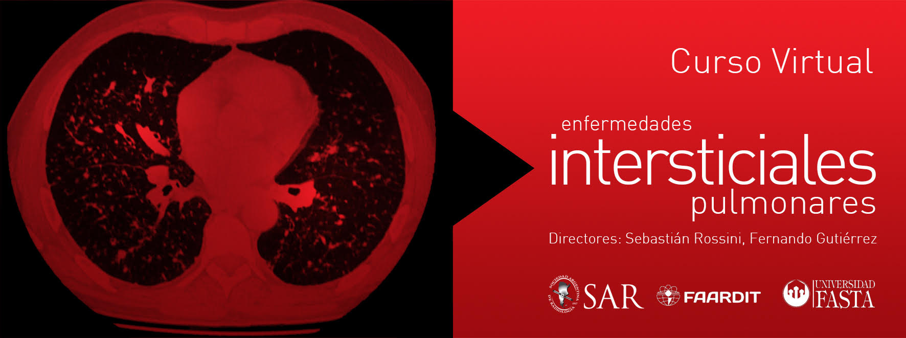 Curso Virtual de Enfermedades Intersticiales Pulmonares